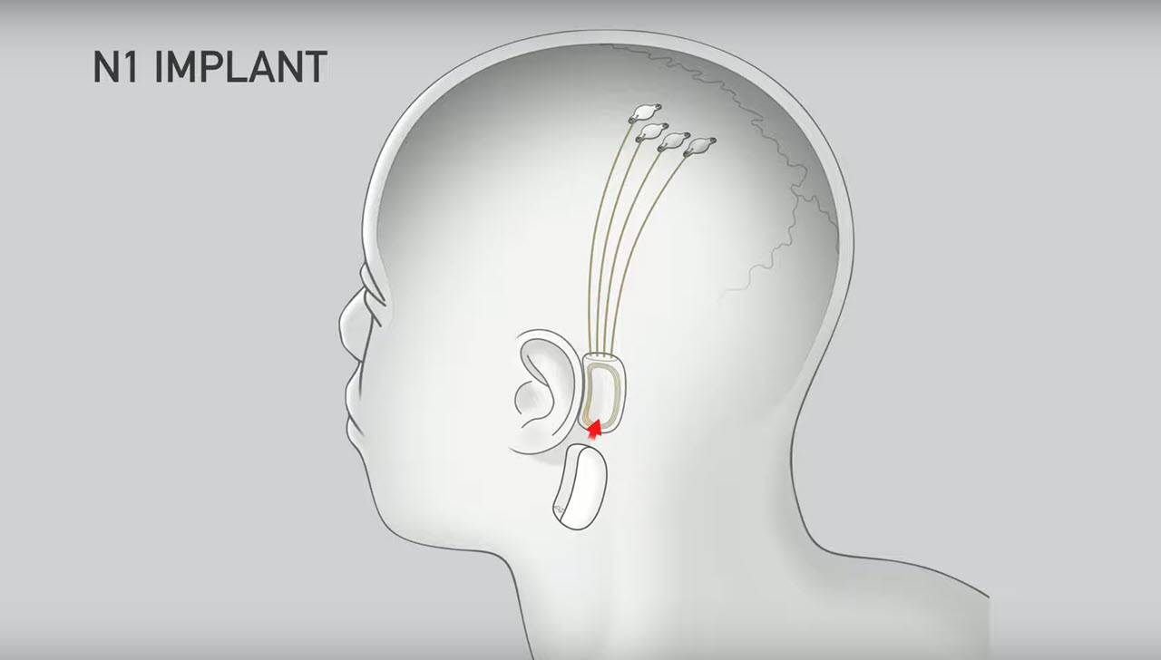Elon Musk's Neuralink to begin human trials from 2020